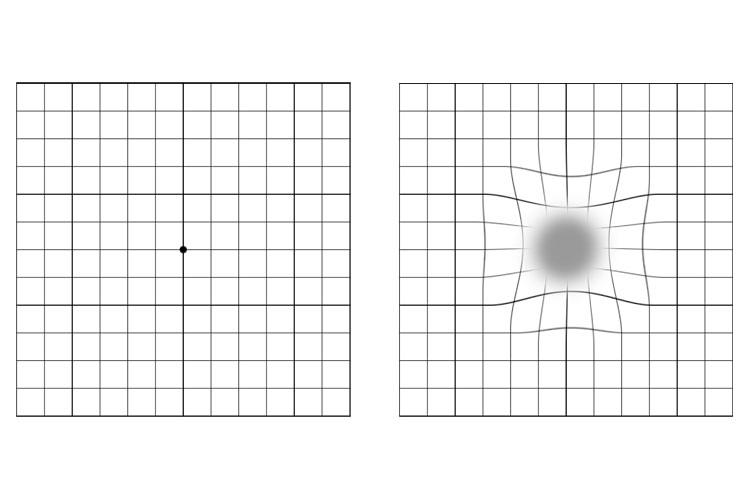 Amsler-Test, wie er aussehen sollte (links) und wie er für AMD-Patienten aussieht (rechts). // Quelle: Veronika Scheuer