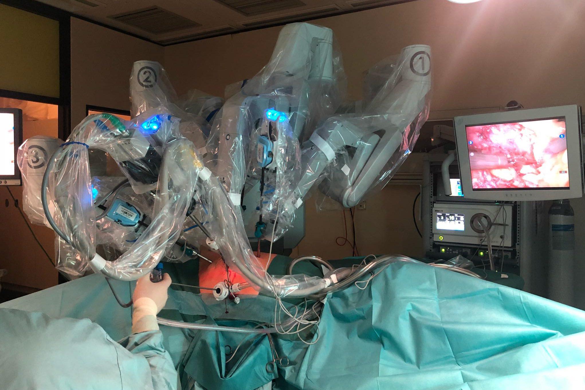 Die Roboterarme von Da Vinci sind im Einsatz zur Entfernung des Tumors in der rechten Niere. Foto: Sezen Yildirim