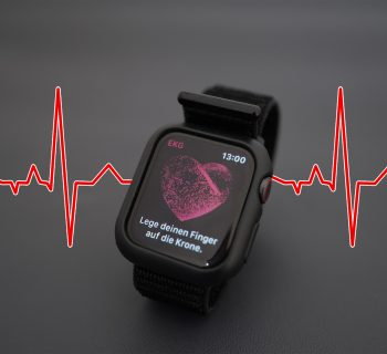 ECG function on a apple watch